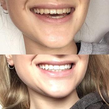 Crest 3d Whitestrips Supreme Flexfit Bright White Teeth Cali White