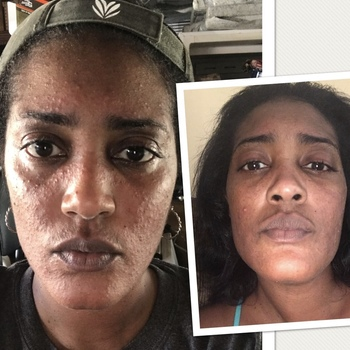 Urban Skin Rx - Skin Care From The Melanin Experts